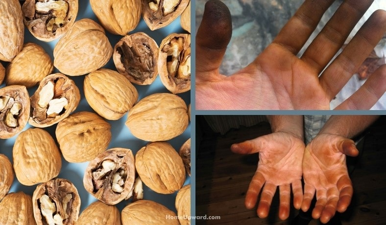 how to remove walnut stains from skin featured image