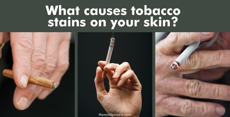 what causes tobacco stains on your skin?